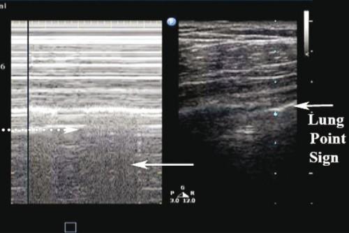 Pneumothorax_Images PasNormales3.jpg